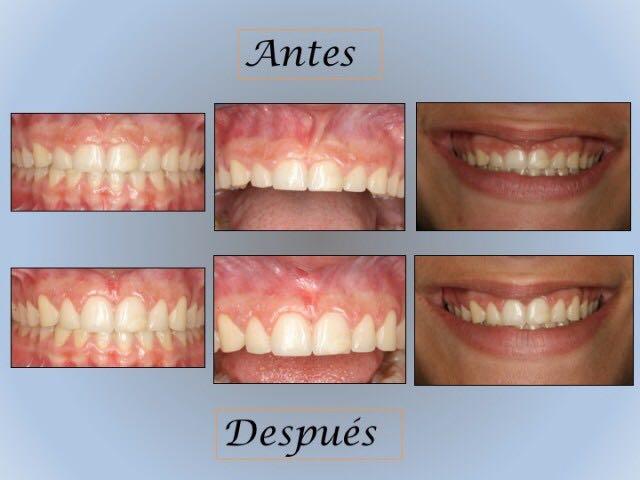 Clínica dental Rocío Mompó, cirugía oral en Benimaclet, Valencia.