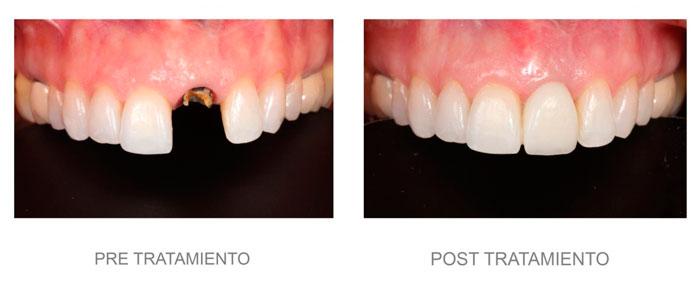 implante en Benimaclet, Valencia