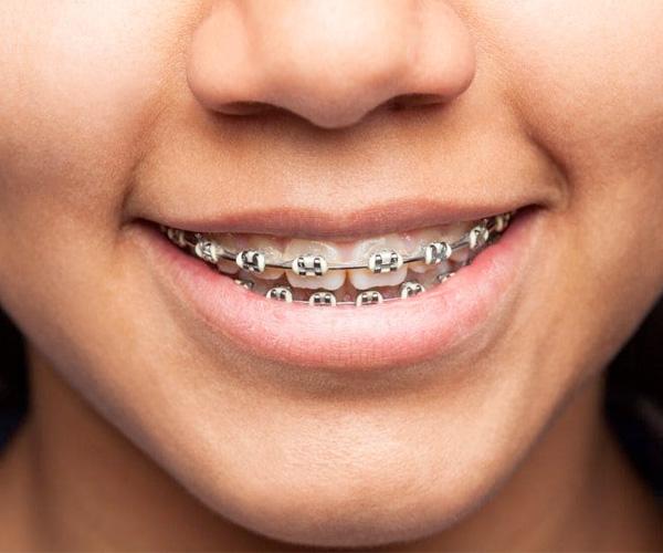 tipos-de-ortodoncia-estetica