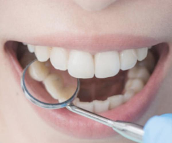 miedo-ir-al-dentista