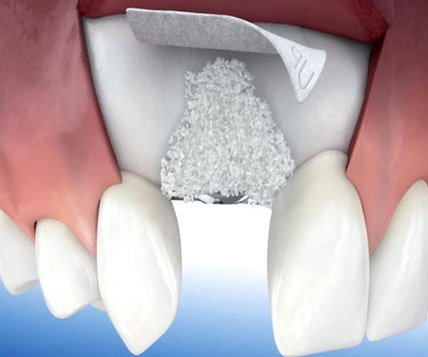 pérdida de hueso dental