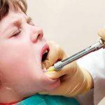 anestesia dental en niños