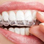 ortodoncia-invisible-invisalign