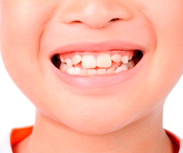 hipoplasia dental en niños